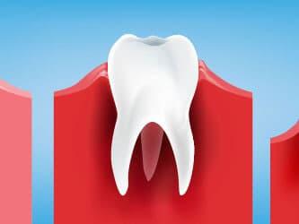 Diş eri çekilmesini gösteren bir çizim.