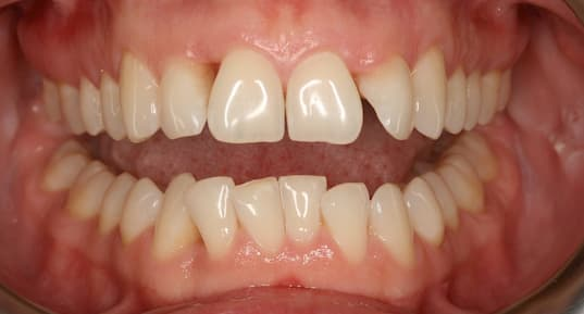 Agresif periodontitisli bir ağız