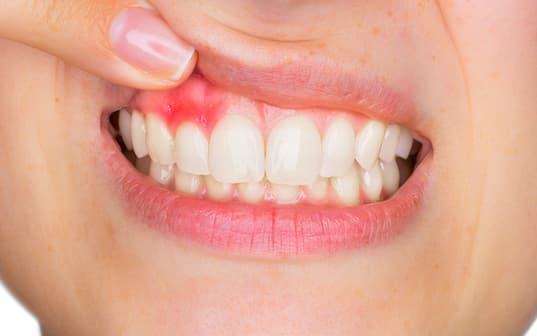 gingivitisli bir ağız