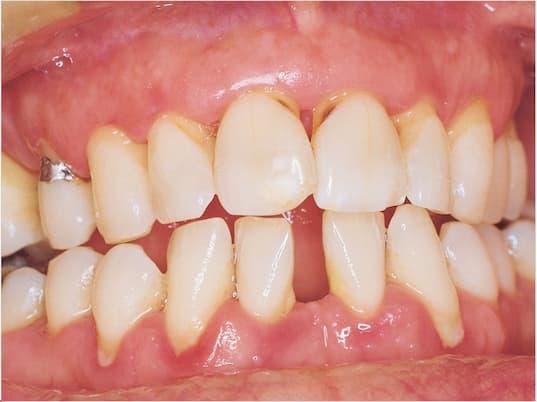 kronik periodontitisli bir ağız