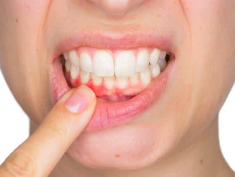 Diş eti kanaması olan bir ağız.