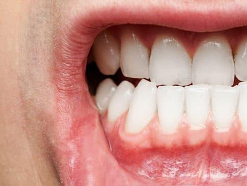 Diş eti şişmesi olan bir ağız.