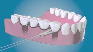 Dental İmplant Temizliği
