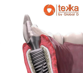 Tekka dental implant logo
