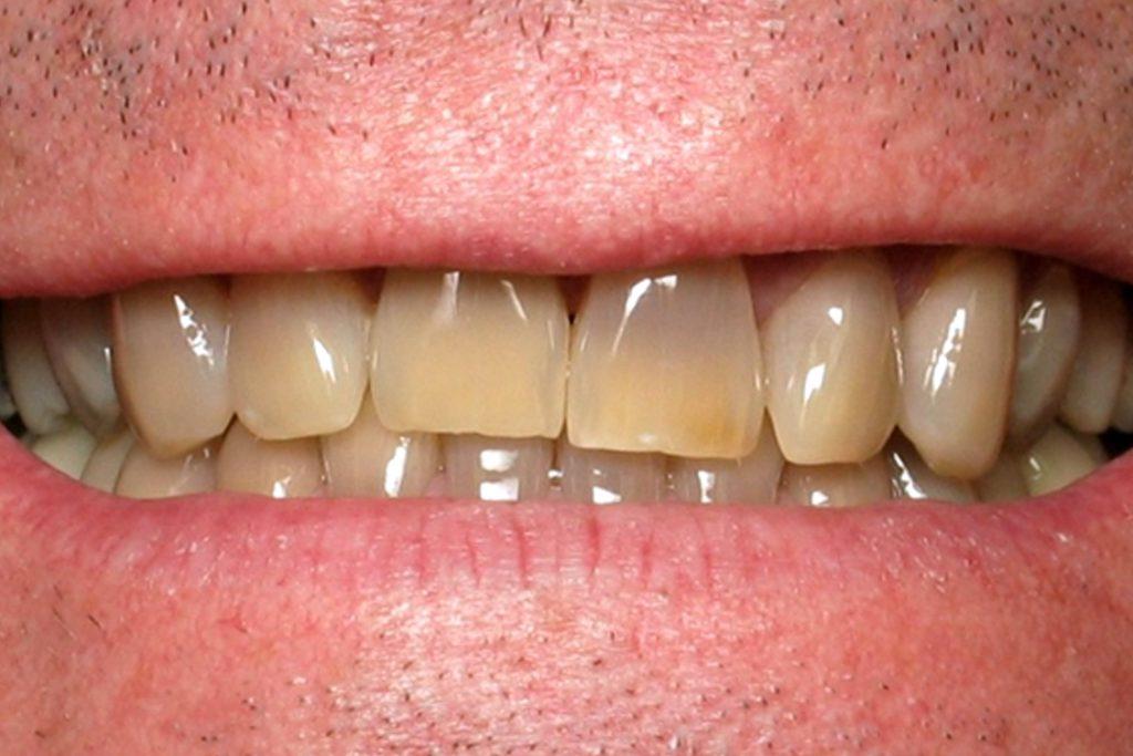Rengi değişmiş dişler