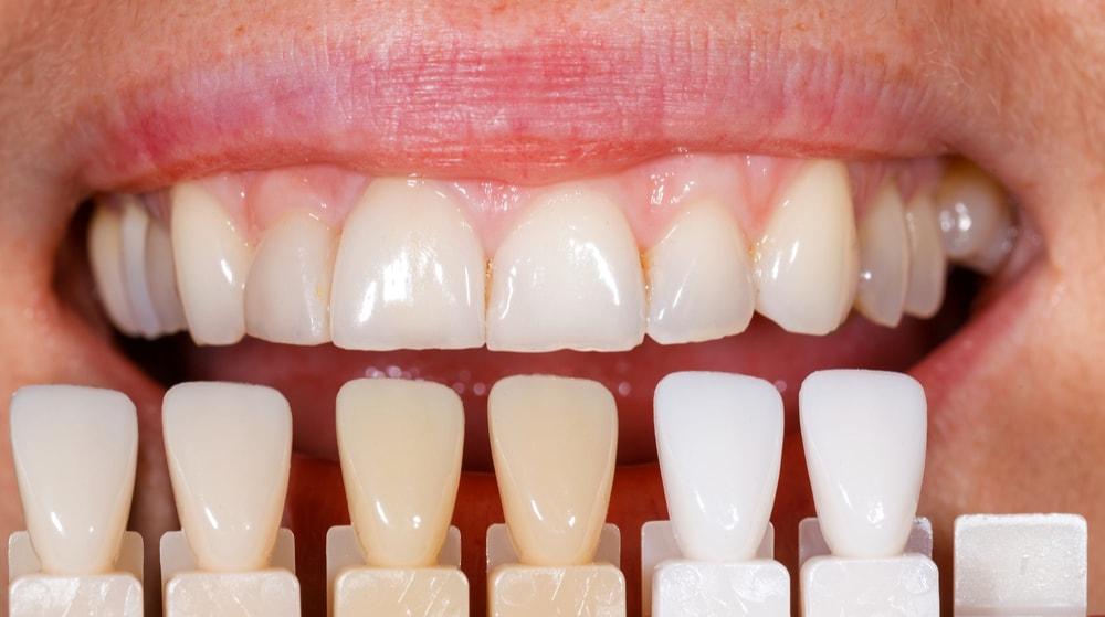 Diş renkleri